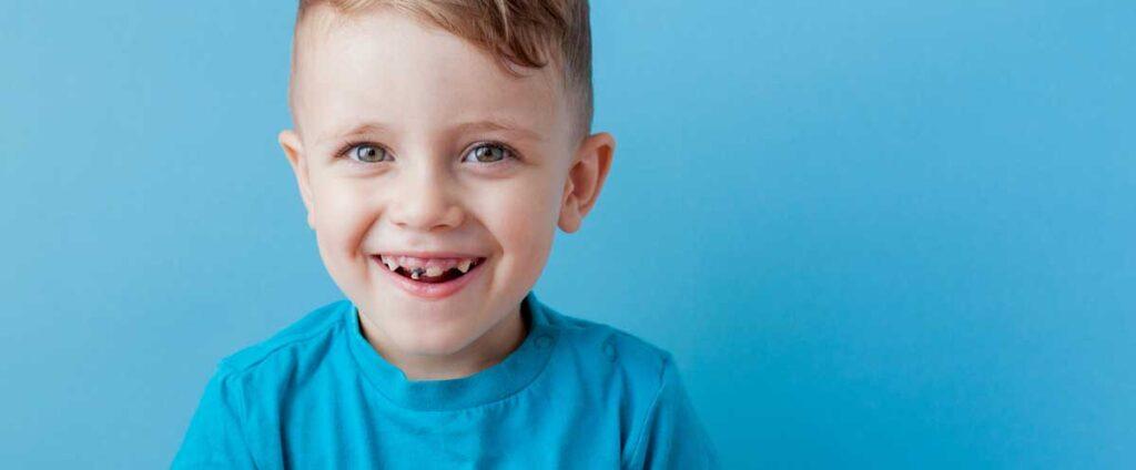 What to Do If Your Child Has a Cavity — and How to Prevent More - نحوه مقابله و درمان پوسیدگی دندان کودکان + راه های پیشگیری