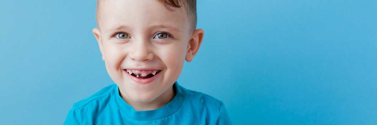 What-to-Do-If-Your-Child-Has-a-Cavity-—-and-How-to-Prevent-More
